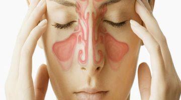 5 Obat Herbal Sinusitis Kronis yang Mudah Ditemukan di Rumah